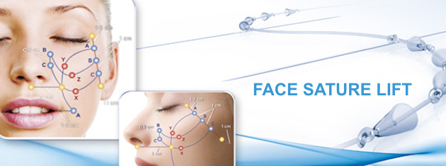 FACELIFTING SUTURES Silhouette soft lifting
