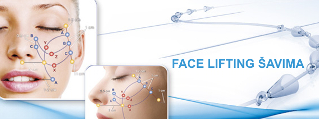 FACELIFTING ŠAVIMA – Silhouette soft  lifting